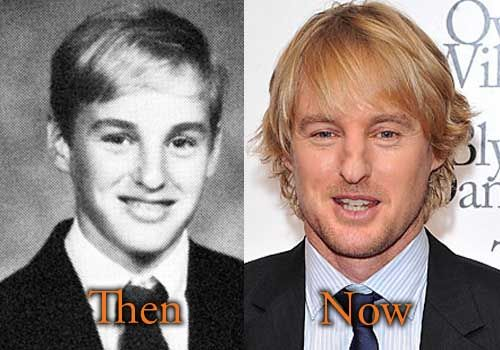 Owen Wilson Before Nose Broke