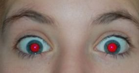 Red Eye Photos - Causes and How to Fix Red Eye Pictures