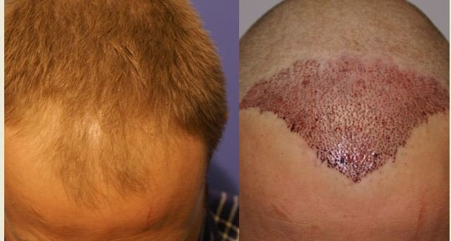Hair Transplant to treat receding hairline
