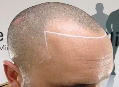 What can be done on receded hairline
