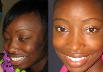 Skin Whitening Home Remedies - Before and after for dark skin